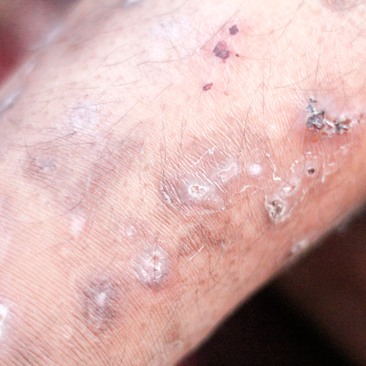 Acarodermatitis